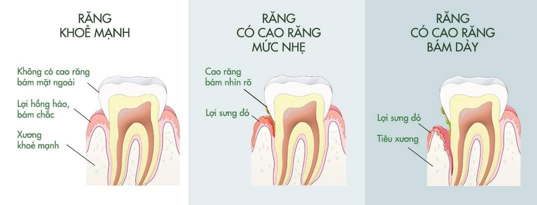 Cao răng hình thành như thế nào