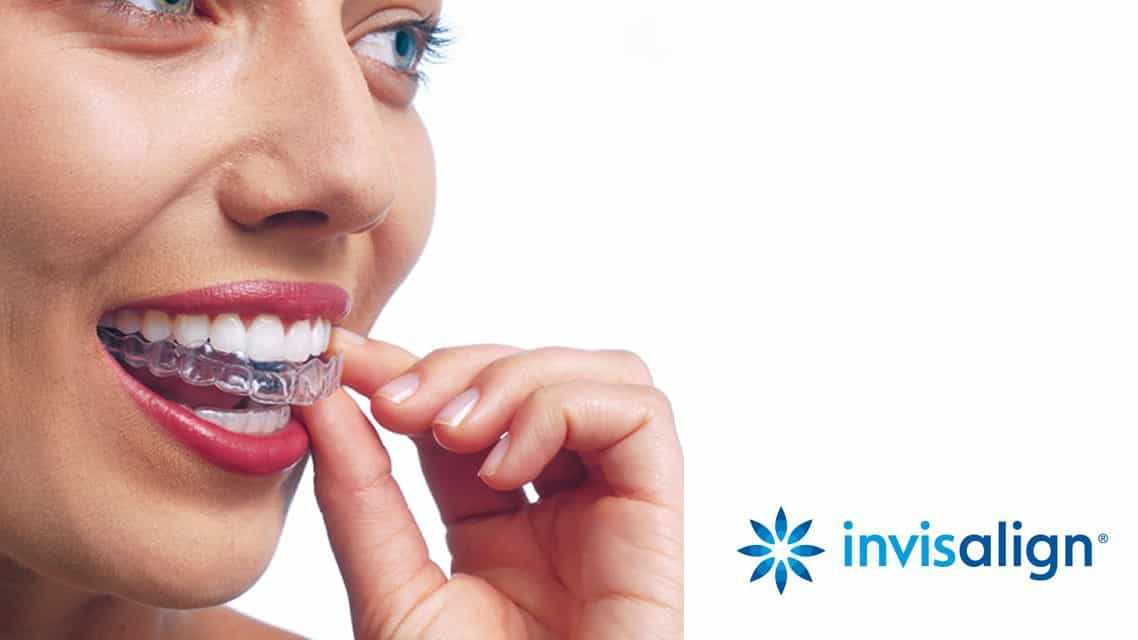 niềng răng trong suốt Invisalign tại Parkway
