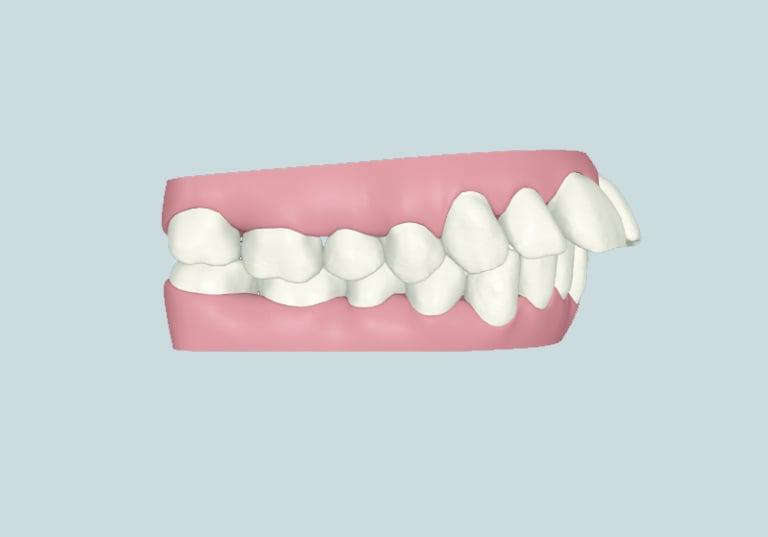 răng hô răng vẩu khi nào cần niềng răng nha khoa parkway