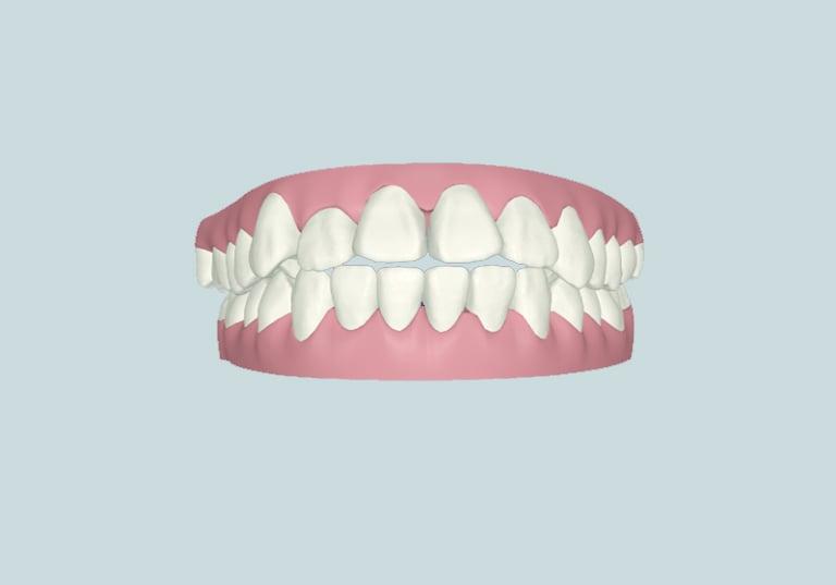 khớp cắn hở khi nào cần niềng răng nha khoa parkway