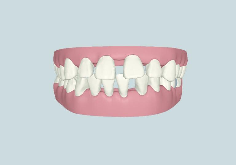 khi nào cần niềng răng tại nha khoa parkway