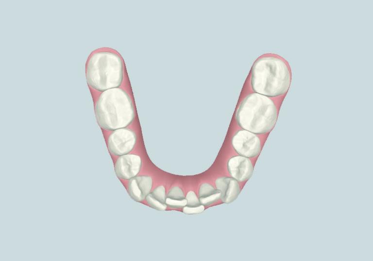 răng khấp khểnh tại nha khoa parkway