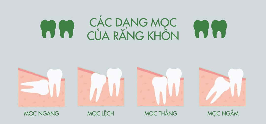 Nhổ răng khôn có đau không?