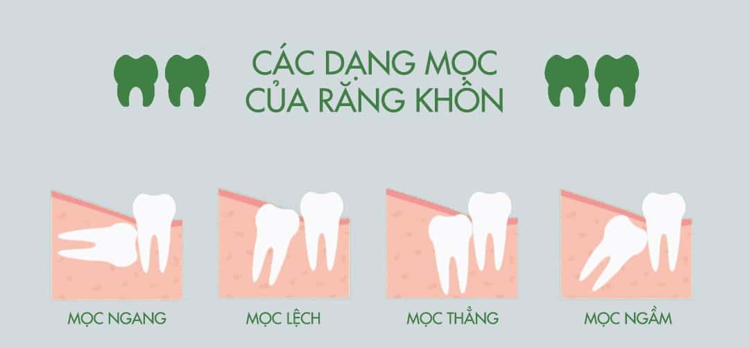 các dạng răng khôn mọc lệch