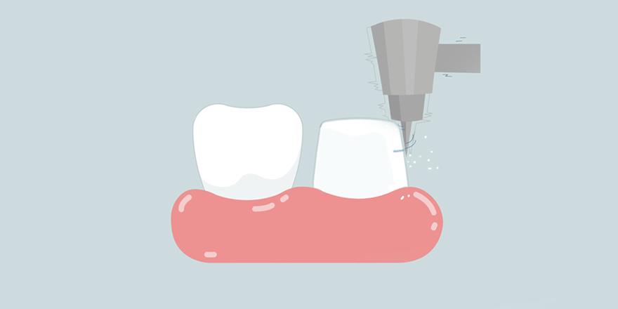 Hiểu Đúng Về Mài Răng Khi Làm Răng Sứ Thẩm Mỹ