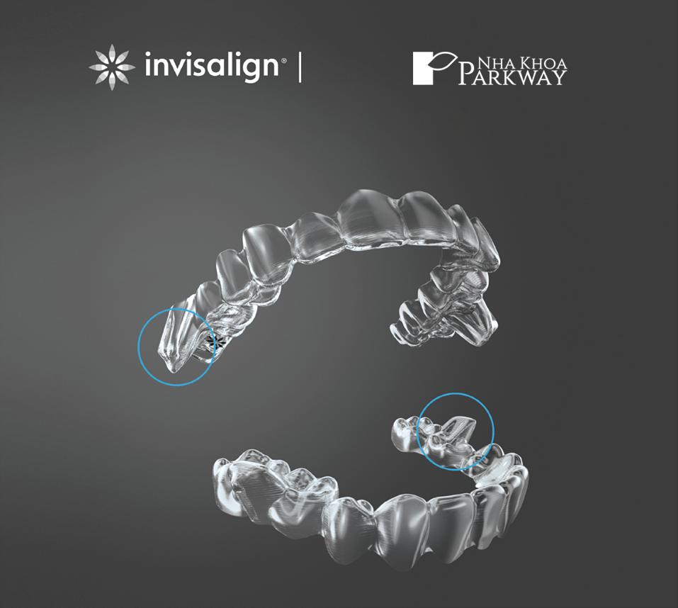 ưu điểm của niềng răng Invisalign tại nha khoa Parkway