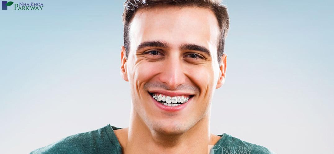 dịch vụ niềng răng mắc cài tại nha khoa Parkway
