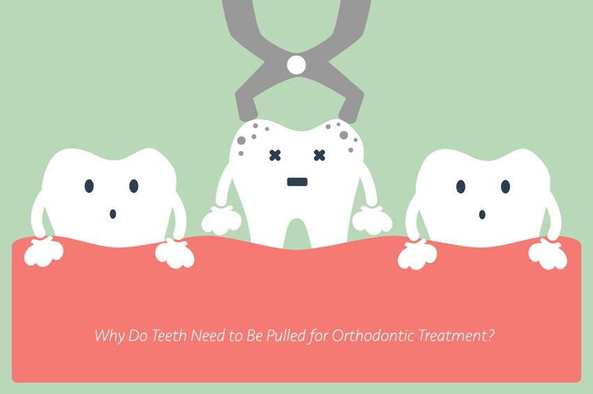 niềng răng hô có bắt buộc nhổ răng không