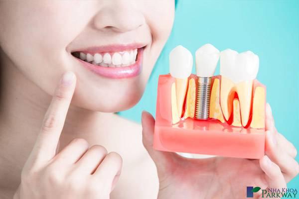 trồng răng Implant có đau không trồng răng implant nha khoa parkway