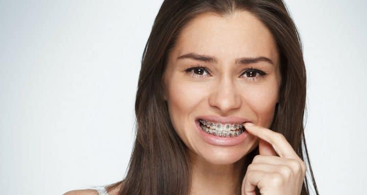 Kết quả hình ảnh cho niềng răng khi mang thai