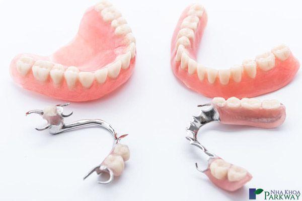 răng giả tháo lắp nha khoa parkway