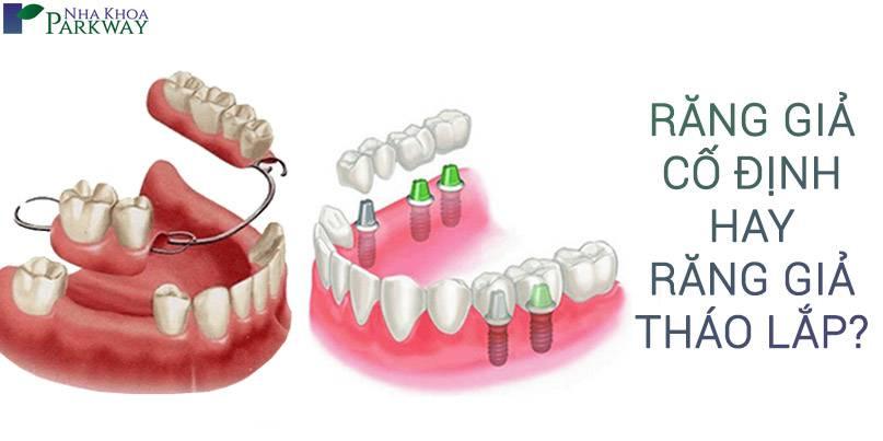 so sánh răng giả tháo lắp và răng giả cố định nha khoa parkway