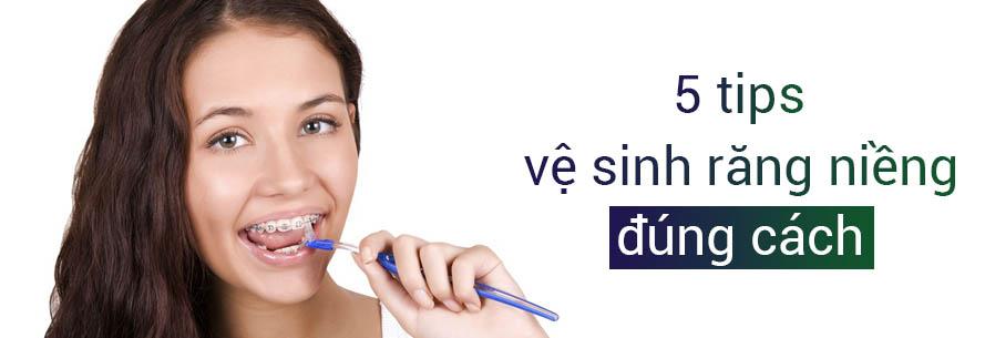 vệ sinh răng niềng đúng cách