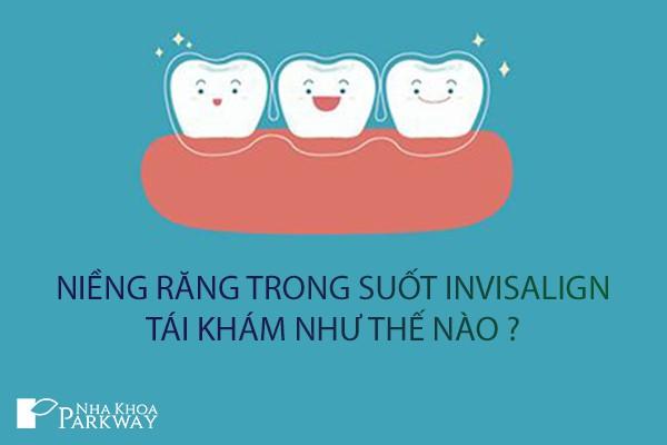 tái khám niềng răng trong suốt