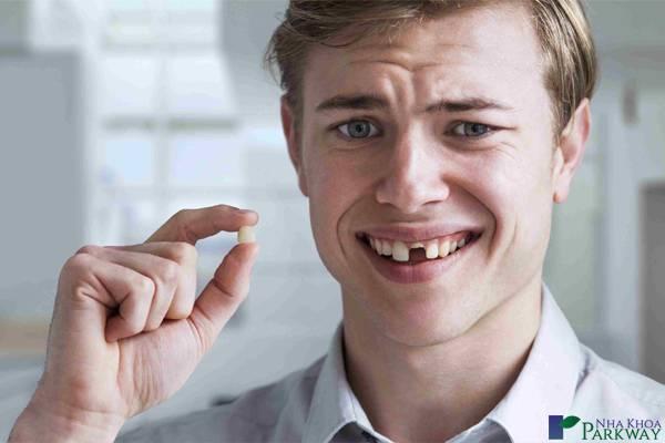 ai cần trồng răng Implant nha khoa parkway mất răng hàm gãy răng cửa gãy nửa răng cửa răng cửa gãy ngang