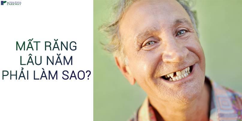 mất răng lâu năm trồng răng implant