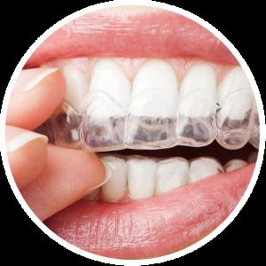 niềng răng invisalign pw