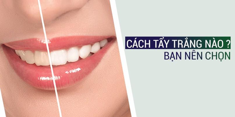 Phương pháp tẩy trắng răng nào là tối ưu cho bạn?