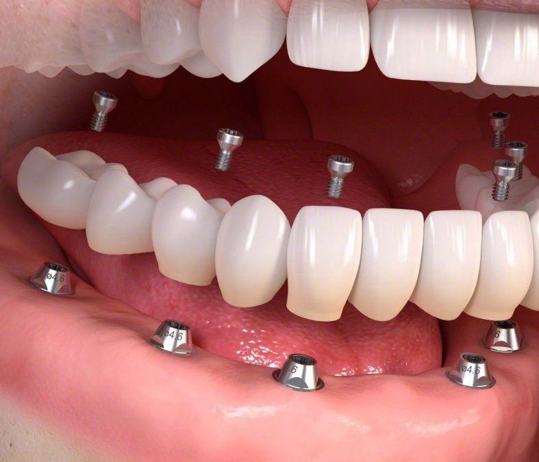 trồng răng implant all on 6 trồng răng toàn hàm mất răng toàn hàm trồng răng giả toàn hàm