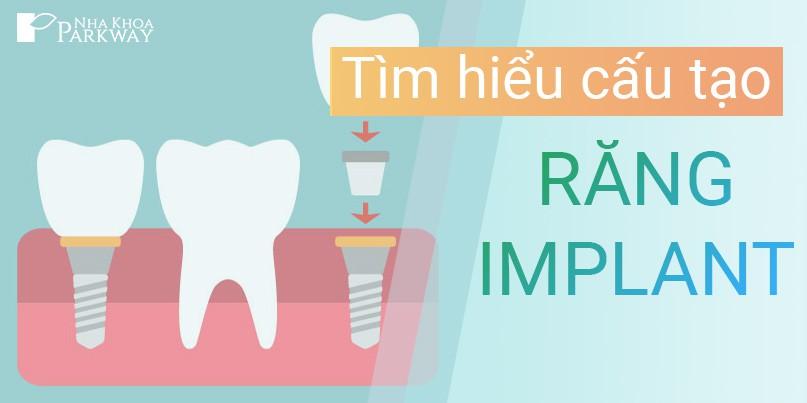 cấu_tạo_răng_implant