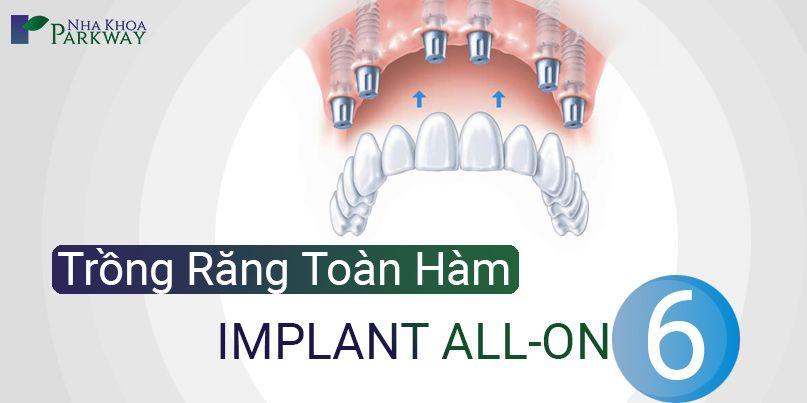 implant_all_on_6_thumb