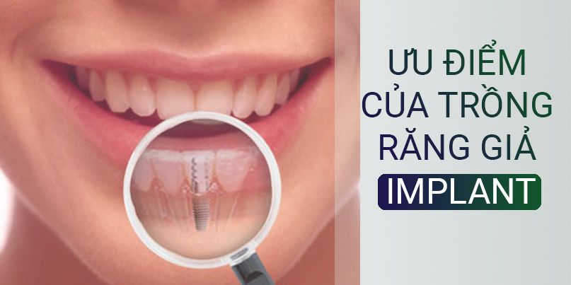 ưu_điểm_trồng_răng_implant