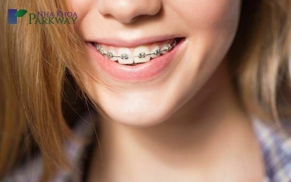 Yếu tố ảnh hưởng đến giá niềng răng mắc cài kim loại