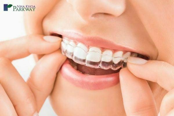 yếu tố ảnh hưởng đến giá niềng răng trong suốt