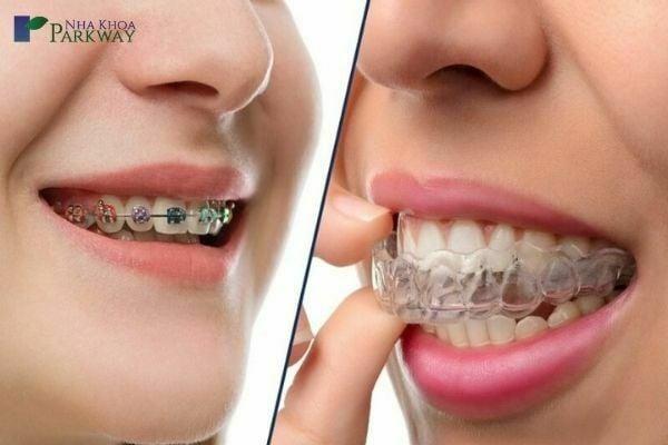 các trường hợp niềng răng trong suốt