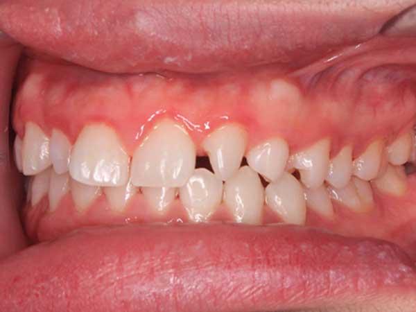 hình ảnh niềng răng thưa