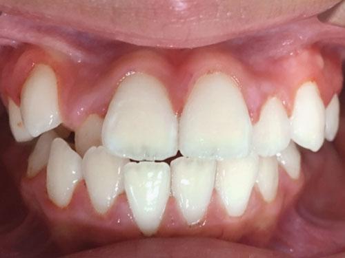 hình ảnh niềng răng khấp khểnh