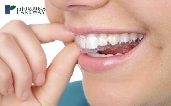 Niềng răng không mắc cài 3d clear