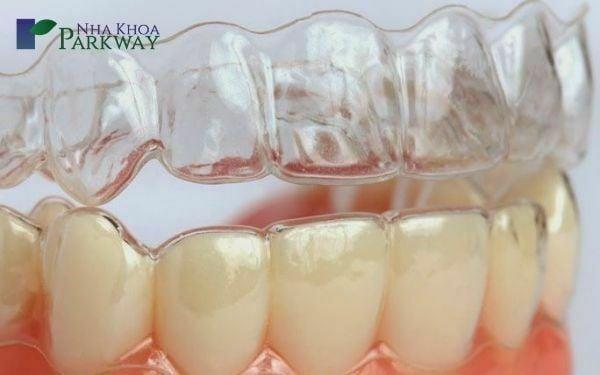 Niềng răng không mắc cài là gì