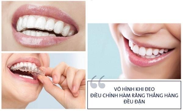 ưu điểm niềng răng không mắc cài