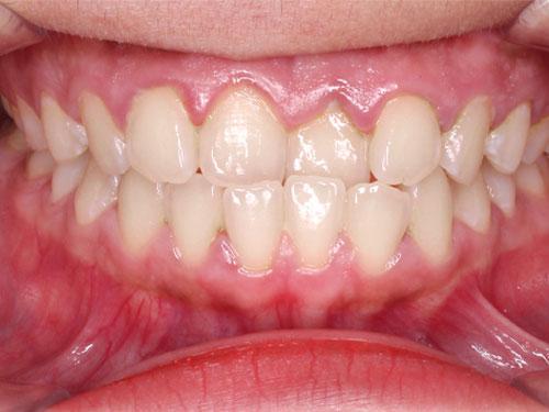 hình ảnh niềng răng móm