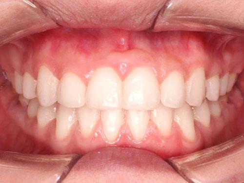 kết quả niềng răng móm