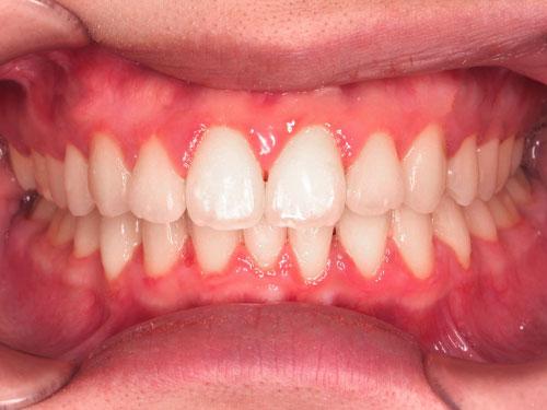 kết quả niềng răng hô