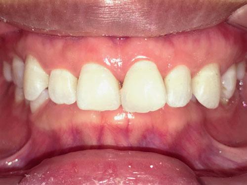 hình ảnh niềng răng hô