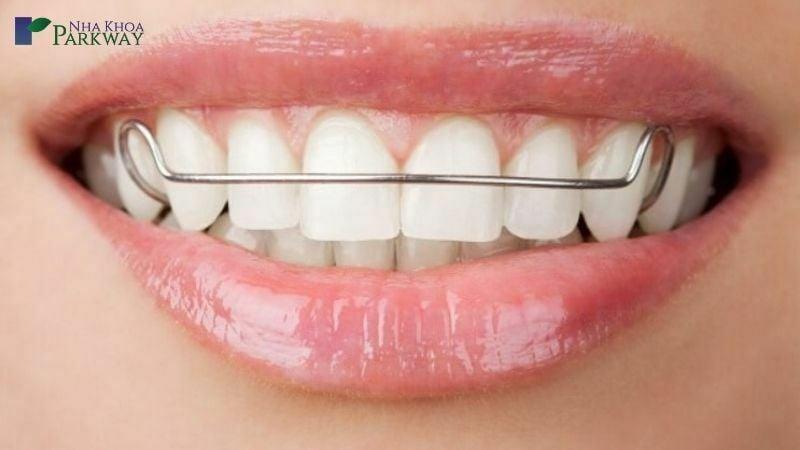 Hàm duy trì sẽ đảm bảo hiệu quả niềng răng được tốt nhất