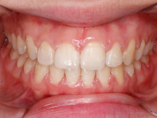 kết quả niềng răng thưa
