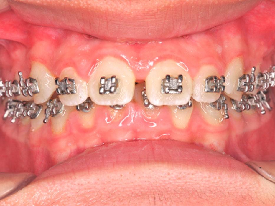hình ảnh niềng răng cắn sâu
