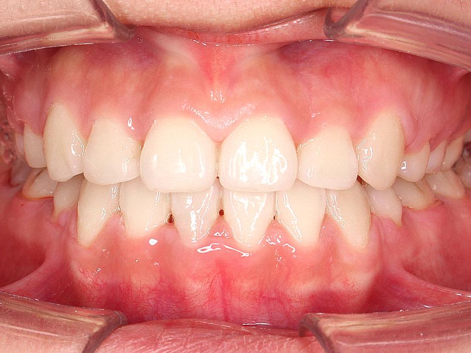 kết quả niềng răng khấp khểnh