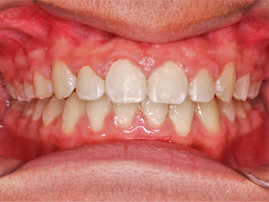 kết quả niềng răng cắn sâu