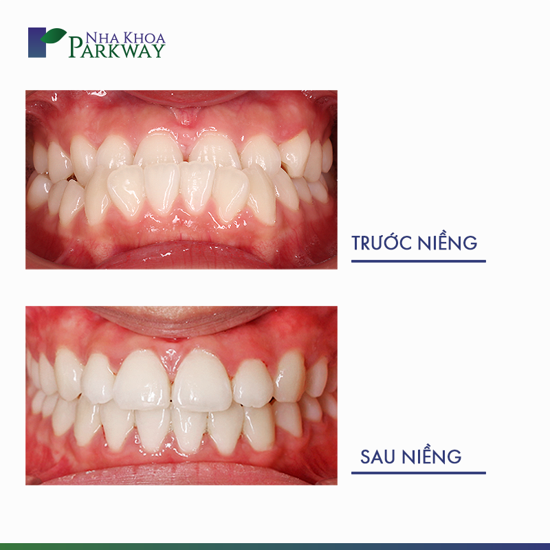 hình ảnh trước và sau khi niềng răng Invisalign