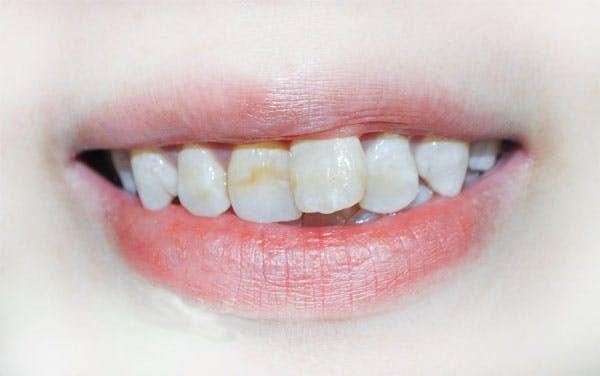 niềng răng cửa có hiệu quả không