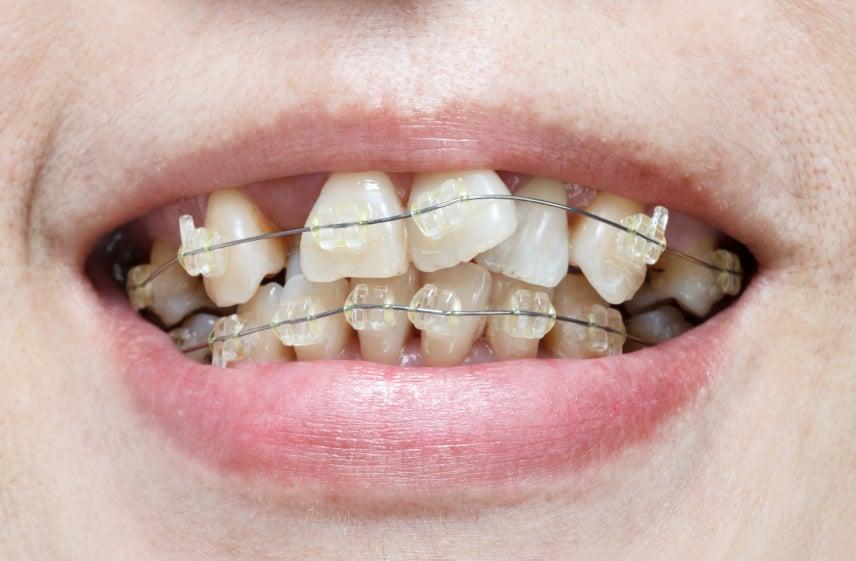 niềng 2 răng cửa mọc lệch