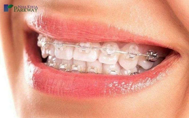 thời gian niềng răng mắc cài sứ