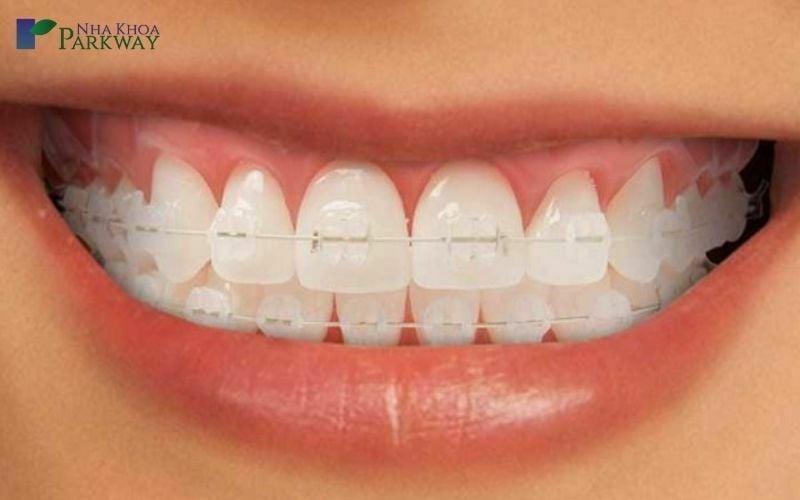 ưu điểm niềng răng mắc cài sứ