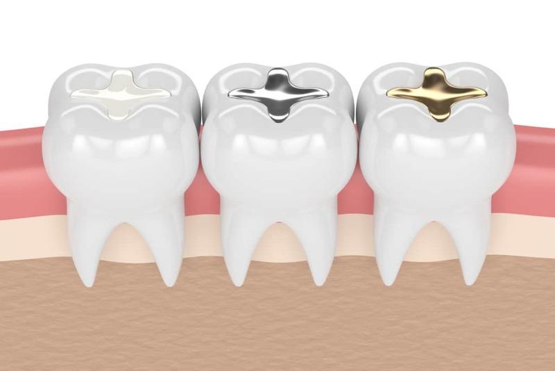 Các loại vật liệu trám răng