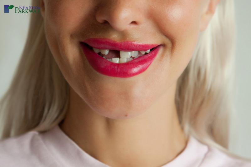 ai nên trồng răng implant nha khoa